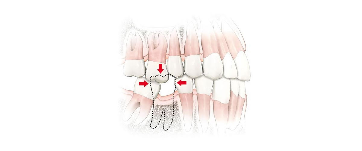 Dro implantati